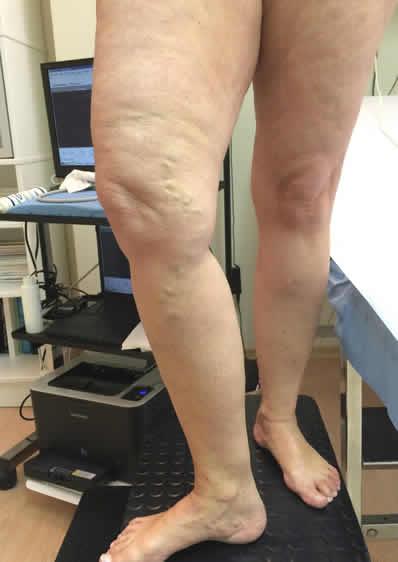 VaricePrimaDellaScleroterapia
