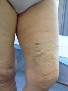 Il trattamento con scleroterapia laser-assistita (LAFOS)