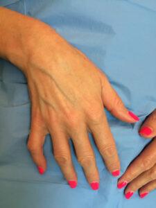 Le vene del dorso della mano