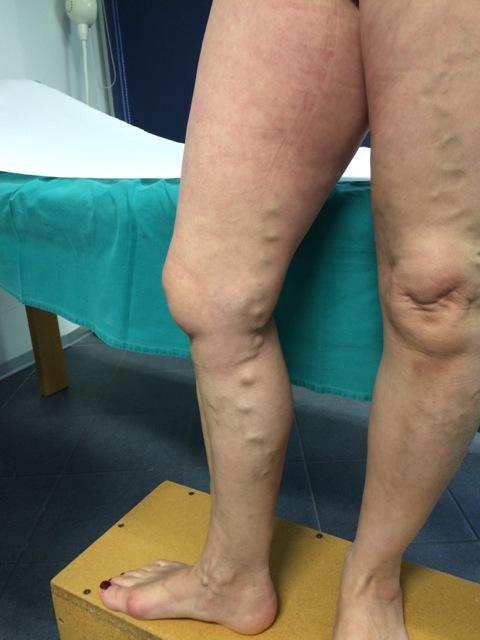 La scleroterapia ecoguidata