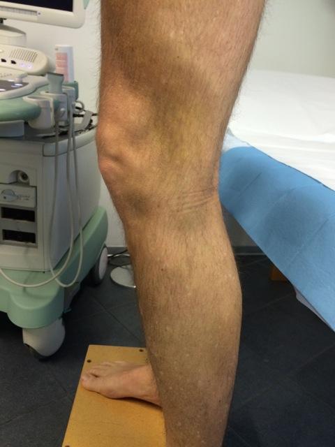La schiuma sclerosante come unico trattamento delle vene varicose